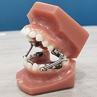 Herbst Appliance Dream Smiles Orthodontics Miami Fl